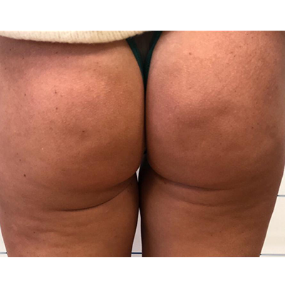 Before-Glutei